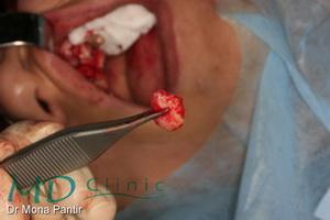 md_clinic_15_Grefa conjunctiv