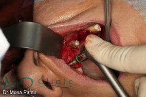 md_clinic_5_Condensare osoasa 21