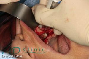 md_clinic_6_ Recoltare os autogen din creasta zigomato-alveolara
