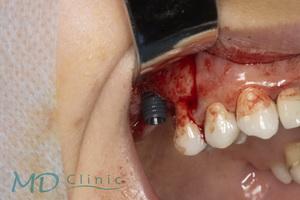 mdclinic_10implantul_pasat_la_nivelul_1.6