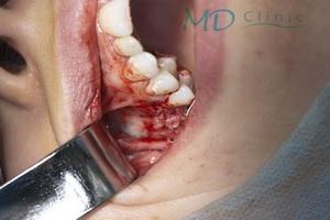 mdclinic_12osul_autogen_in_jurul_implantului
