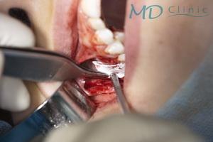 mdclinic_14fixarea_membranei_vestibular