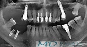 mdclinic_1_indepratare_implant_H1_m