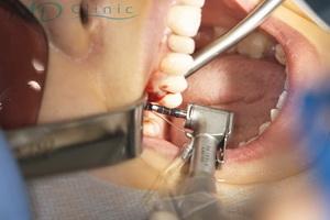 mdclinic_4prepararea_lojei_implantare