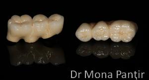 metalo_ceramica_pe_implante
